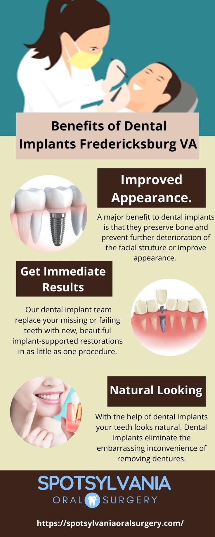Benefits of dental implants fredericksburg va