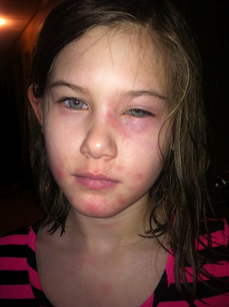 1000 Images About Kids Skin Problems On Pinterest Skin