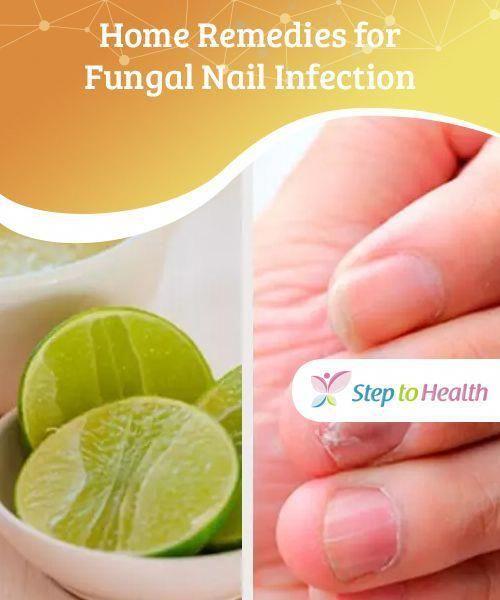 Topical Toenail Fungus Treatment Jublia  #CureForFungalNailInfection
