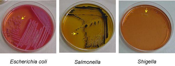 Salmonella-Shigella plates