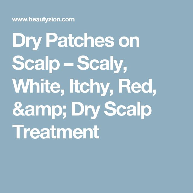 Dry Patches on Scalp – Scaly, White, Itchy, Red, & Dry Scalp Treatment