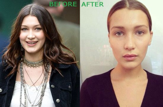 Bella Hadid Plastic Surgery Before and After 550x364 Bella Hadid Plastic Surgery Before and After