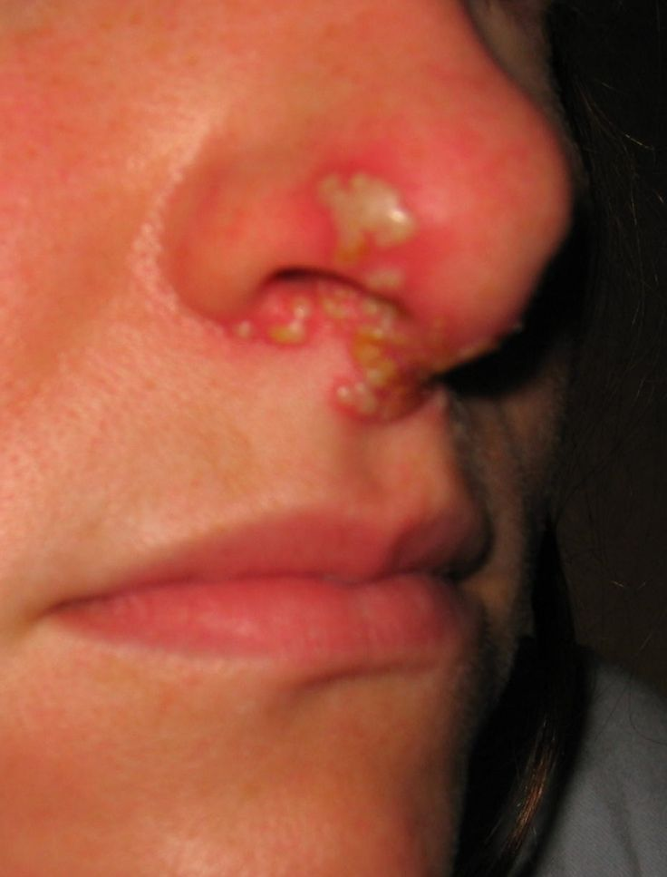 Can A Cold Sore Cause Genital Herpes