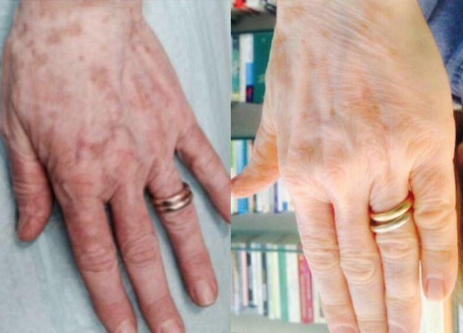 Vitiligine - prima e dopo 60 giorni dal trattamento