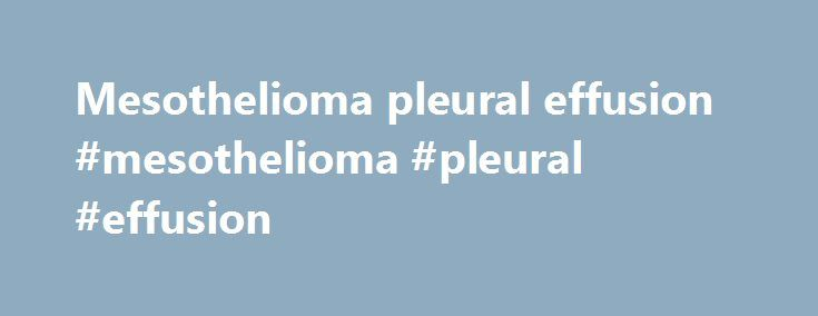"""Mesothelioma pleural effusion #mesothelioma #pleural #effusion http://indiana.nef2.com/mesothelioma-pleural-effusion-mesothelioma-pleural-effusion/  # effusion Half of patients do not recall a tick bite or observe a rash, and early symptoms are not always detected when a physician diagnoses a knee effusion ,"""" said Dr. Imaging revealed cardiomegaly (Figure 2a), a large pericardial effusion and pneumatosis intestinalis of the ascending colon (Figure 2b), and global cardiomyopathy with an…"""