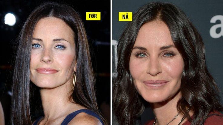 BOTOX?: Det er 10 år som skiller disse to bildene av Hollywood-skuespiller Courteney Cox. Huden er like glatt som den var for 10 år siden, men desto mer pløsete...