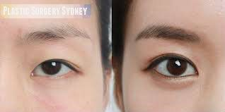 Get Introduced To The Famous Surgeon Dr Charles Cope, Best Plastic Surgery Sydney, Intensifies Your Beauty