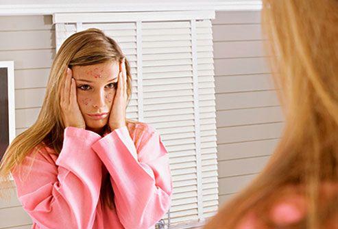 Conheça os tipos de acne (com fotos) e as duas terapias existentes para a doença. Saiba como reconhecer todos os sinais diferentes da acne. Conheça sua acne.
