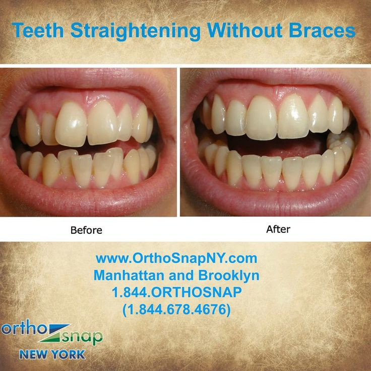 Best 25 Straighten Teeth Without Braces Ideas On