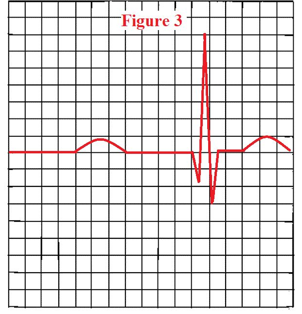 When a nurse is interpreting an EKG, it is important the nurse knows how to measure a PR interval. The PR interval represents atrioventricular (AV) node conduction time. The AV node is part of the …