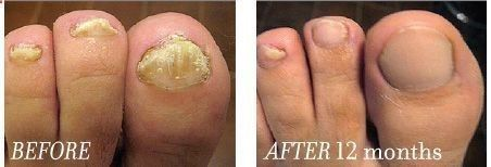 Get your nail fungus treatment information when you click here. The warm weather is here. Get your cure now!