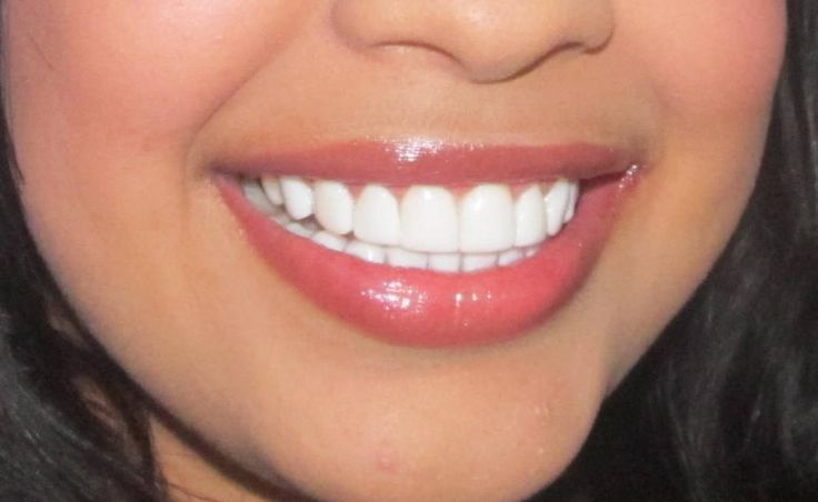 Odontología Estética Integrada Odontesin: Caso Clínico: diseño de ...