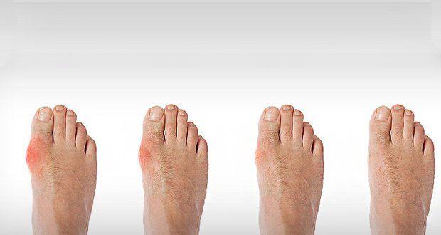 Des remèdes naturels simples mais puissants pour se débarrasser des oignons, ces déformations qui provoquent une déviation anormale du gros orteil.