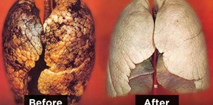 S tímto návodem si rychle vyčistíte plíce za pouhé 3 dny! Jako byste nikdy nekouřili! Kuřáci povinně!
