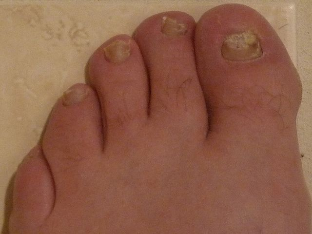 Best Product for nail fungus http://nailfungushelper.net/