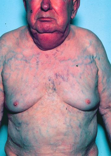 Superior vena cava syndrome appearance
