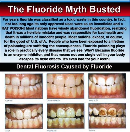8 best Fluoride images on Pinterest | Pineal gland ...