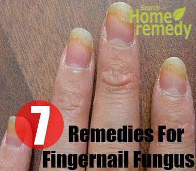 Some people, who do not have proper hygiene sense or have to work with water, sometimes suffer from fingernail fungus. This problem is prone to ...