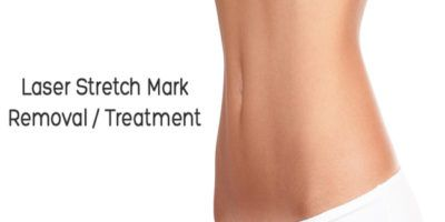 Laser Surgery for Stretch Marks