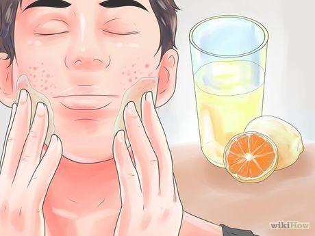 Get Rid of Acne Scars Fast Step 1 Version 2.jpg