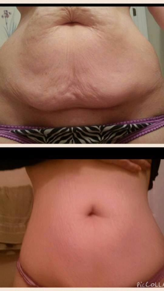 she lost 100lbs and then NeriumFirm helped her belly skin firm up too. What a WIN!! http://www.maggieschmid.nerium.com/