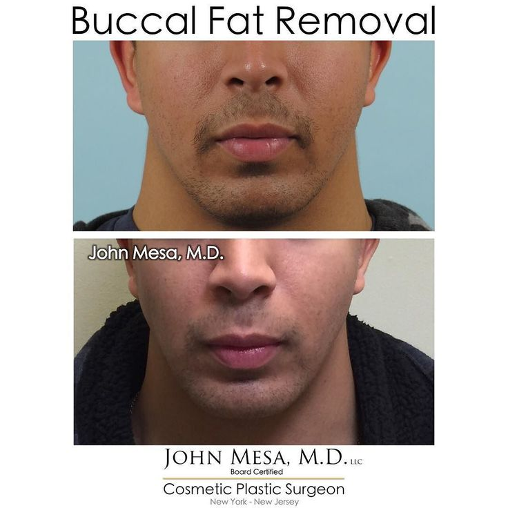 Buccal fat removal for MEN under local anesthesia: The procedure that corrects your chubby cheeks and helps you achieve an sculpted chiseled masculine face  . #buccalfatremoval #bichectomia #vshape #cheekreductionsurgery #surgeryselfie #chubbycheeks #vline #heartshapedface #asianplasticsurgery #chubbycheekreduction #chubbyfacecorrection #selfie #fatface #fatcheek #bichectomy #buccalfatpadremoval #buccalfatpad #bolasdebichat #cheekfatremoval #localanesthesia #contouredface #cheekbones…
