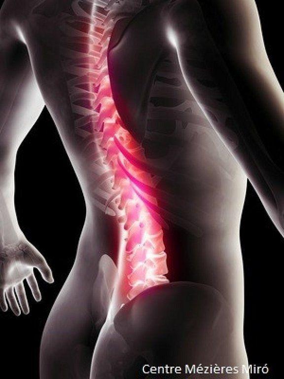 Averigua por qué el miedo de tus neuronas provoca más dolor de espalda