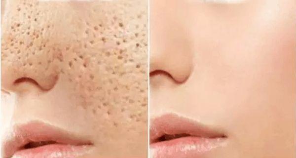 3 jours et tous les pores dilatés disparaîtront de votre peau à jamais
