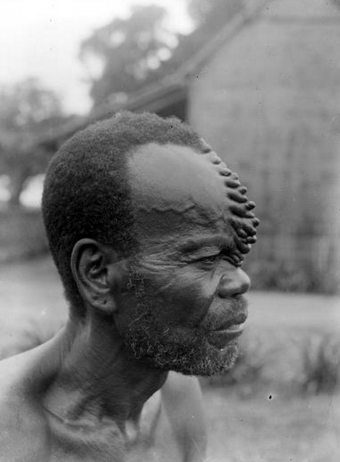 Africa   Man with characteristic 'cockscomb' scarification that was obtained by carving the same place several times. Boko culture. Equateur, DR Congo   ©Auguste M Bal; African Museum Belgium Collection