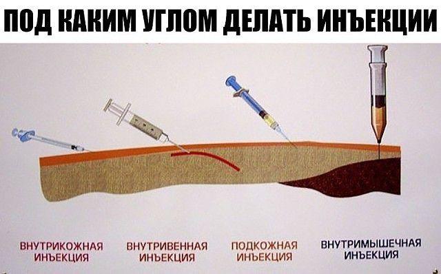 Чтобы правильно делать уколы, вам понадобится некоторая практика, а также наша небольшая шпаргалка. Делать инъекции совсем нетрудно. Главное – быть аккуратным и внимательным. Внутримышечная инъекция — самый распространенный и наиболее простой способ введения в организм