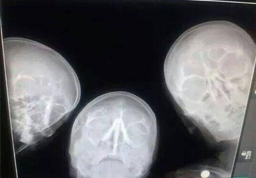#selfie of radiologists