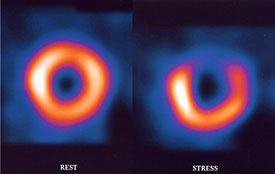 Images taken at rest and during exercise from a nuclear stress test. The dark area shows a location where blood flow is abnormal via Texas Heart Institute.