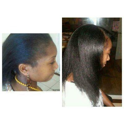 T444z Hair Food products  She has been using the T444z Hair Food for 22 months.  #hairloss #hairbreakage #ItchyScalp #Balding