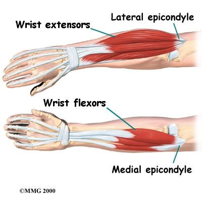 """Lateral Epicondylitis- AKA """"Tennis Elbow""""  Medial Epicondylitis- AKA """"Golfer's Elbow"""""""