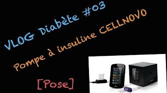 VLOG Diabète #03 - Pompe à insuline Cellnovo [Tablette & Réglages] - YouTube