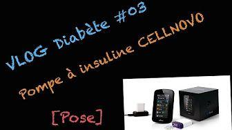VLOG Diabète #03 - Pompe à insuline Cellnovo [Tablette & Réglages] - YouTube