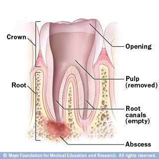 Root Canal | Root Canal Treatment And The Root Canal Procedure | Details From The Oral Care Center