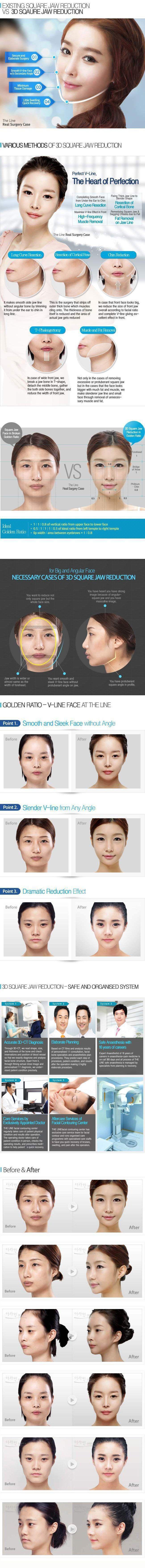Mandibular Jaw Surgery Korea (3D Square & Angle…