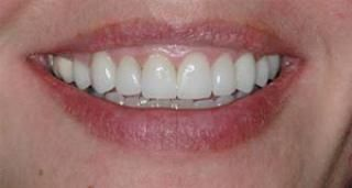 After Picture: This patient had poorly adapted fillings and discoloured teeth due to coffee and Tetracycline (antibiotic) staining. She asked us to improve them while keeping them looking as natural as possible. We restored them with 8 ultra thin porcelain veneers, giving her a natural, elegant look.