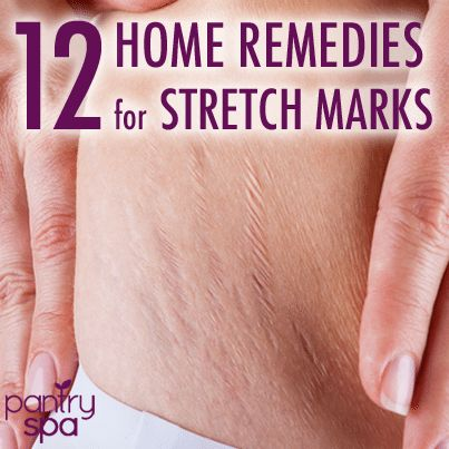 12 Stretch Mark Home Remedies to Remove Purple / Red Stretch Marks