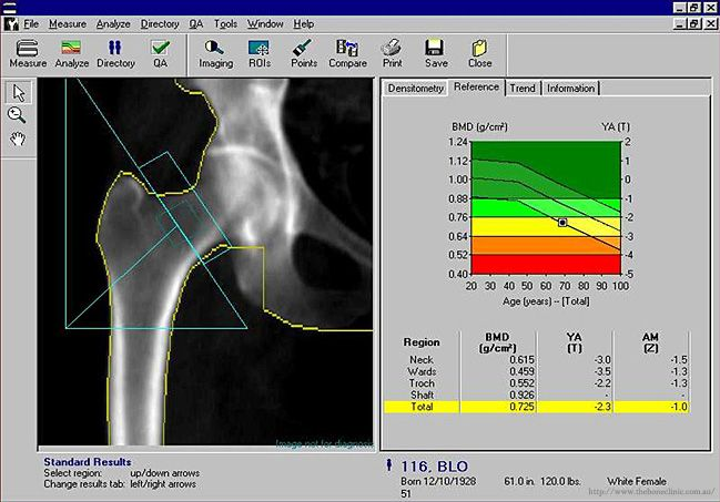 DEXA Scan Brisbane - Computer Screenshot Report