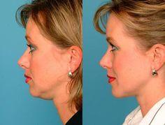 Kto pozná tento pohyb, nevie, čo sú ovisnuté líca, dvojitá brada či vrás…