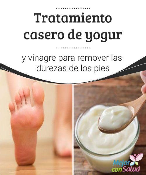 #Tratamiento casero de yogur y vinagre para remover las durezas de los pies   La #combinación de yogur con vinagre nos brinda un completo tratamiento para remover las durezas que afectan la estética de los pies. ¡Pruébalo!