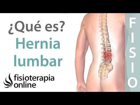 ¿Qué es una hernia discal lumbar y cuáles son sus síntomas y causas? - YouTube