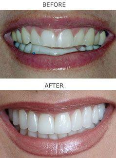 Smile Makeover in San Ramon | Alamo Cosmetic Dentist | San Ramon ...
