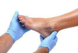 An ankle sprain occurs when the joint twists or extends beyond its normal limits