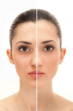 ~Discover how to get rid of age spots on face http://hyperpigmentationhelp.com/skin-bleaching-cream/