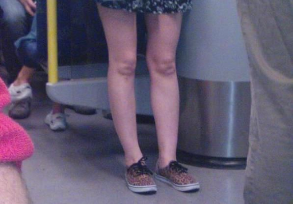 The Poke @ThePoke 1h1 hour ago  Why Are Freaky Baby Faces Appearing In Knees http://www.thepoke.co.uk/2015/01/03/why-are-freaky-baby-faces-appearing-in-knees/#.VKfljyP_Czs.twitter … #journalism