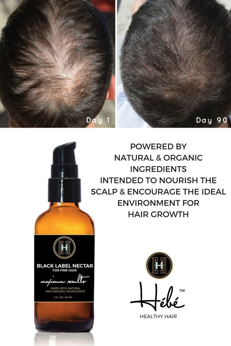 Hair Loss | Thin Hair | HÉBÉ™ BLACK LABEL NECTAR | DENSIFY FINE HAIR is intended to be applied at the root for those with fine to medium textured hair who have been experiencing hair thinning for over