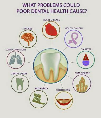 essay dentist visit